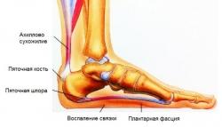 Стельки ортопедические каркасные трёхчетвертные OPTIO GSP 3M