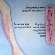 Гольфы антиварикозные К1 ( 25-30 mmHg )